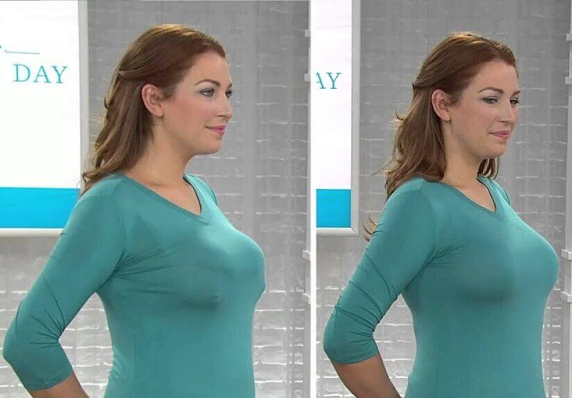 bra minimizer before and after
