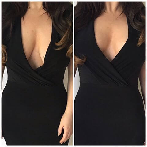 Boob-taping-for-the-Plunge-and-Backless-dress